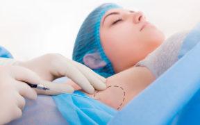 Cómo decir adiós a la hiperhidrosis con toxinas botulínicas